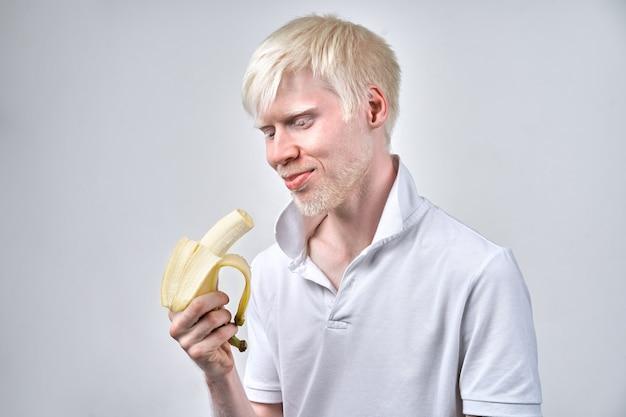 Albinism albino mann im studio gekleidet t-shirt lokalisiert auf einem weißen hintergrund. abnorme abweichungen. ungewöhnliches aussehen