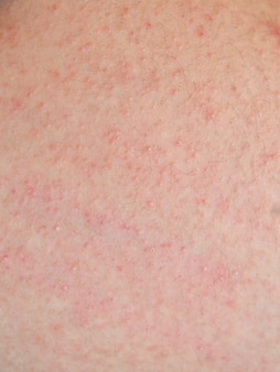 Allergische hautausschlag haut des patienten