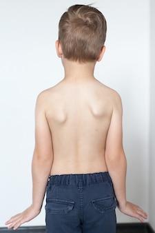 Anatomie der wirbelsäulenkrümmung bei skoliose