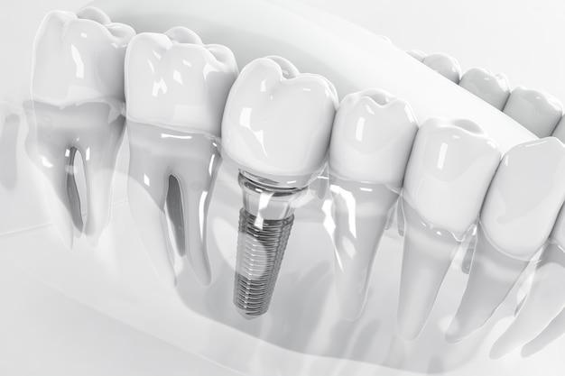 Ansicht von oben auf ein im kieferknochen fixiertes zahnimplantat; 3d; 3d-illustration