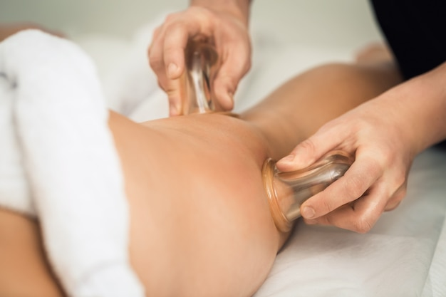 Anti-cellulite-massage der hüften mit vakuumdosen (gläser, bänke).