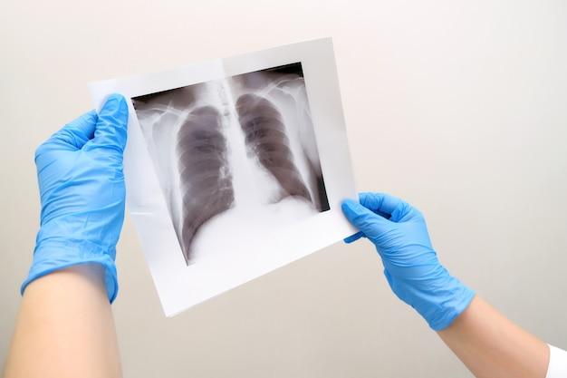 Arzt, der die gesundheit des patienten bei asthma diagnostiziert