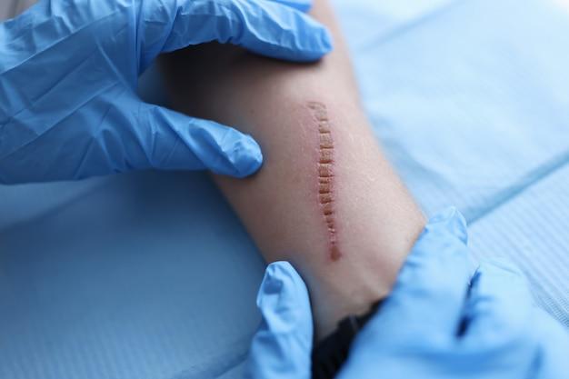Arzt in gummischutzhandschuhen untersucht patientennarbe in kliniknahaufnahme. diagnose und behandlung von wundinfektionskonzept