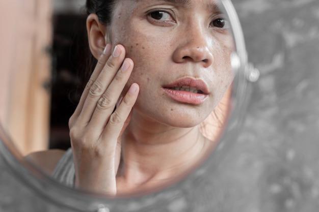 Asiatin, die gesicht mit dunklem fleck im spiegel überprüft