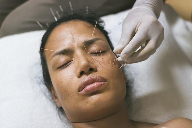 Asiatinakupunktur auf gesicht, zum von gesundheit beizubehalten