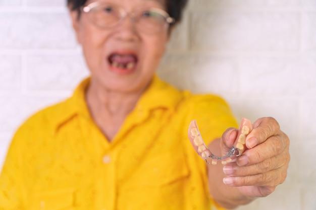 Asiatische ältere frau, die mit einigen gebrochenen zähnen lächelt und in der hand gebisse hält.