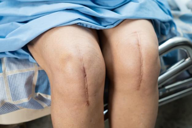 Asiatische ältere oder ältere patientin der alten dame zeigen ihre narben chirurgischen totalen kniegelenkersatz