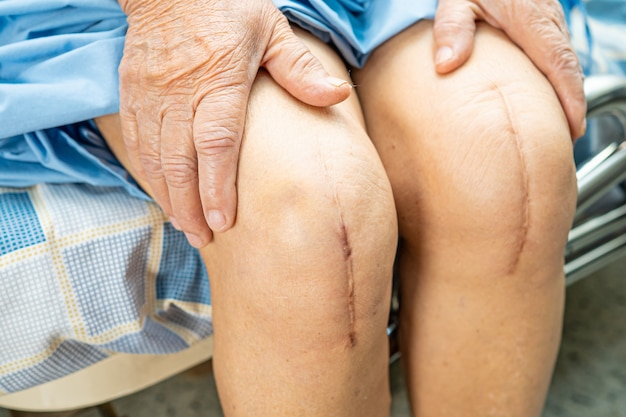 Asiatische ältere patientin zeigen ihre narben chirurgischen totalen kniegelenkersatz.
