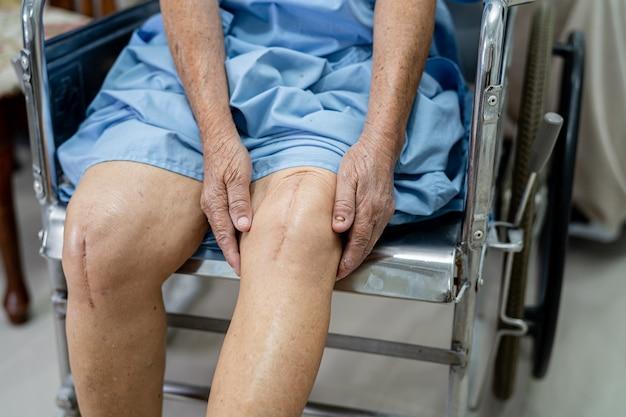 Asiatische ältere patientin zeigt ihre narben chirurgischer kniegelenkersatz