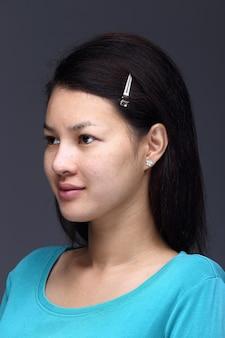Asiatische frau vor dem auftragen bilden blaues hemd der schwarzen frisur. keine retusche, frisches gesicht mit akne, schöne und glatte haut. studiobeleuchtung grauer hintergrund