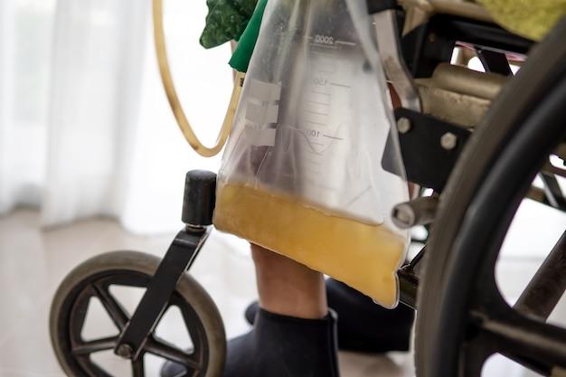 Asiatische patientin sitzt im rollstuhl mit urinbeutel auf der krankenstation, gesundes medizinisches konzept