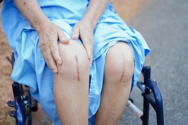 Asiatischer älterer frauenpatient zeigen ihren chirurgischen gesamtkniegelenkersatz der narben.