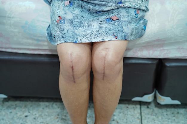 Asiatischer älterer patient der dame alter frau zeigen ihren chirurgischen gesamtkniegelenkersatz der narben.