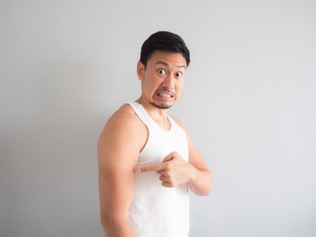 Asiatischer mann erhalten sonnenbrand auf dem arm