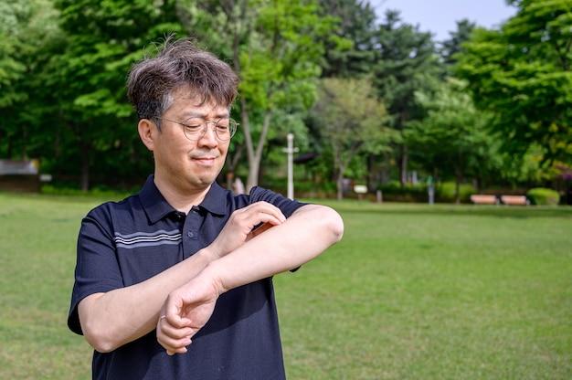 Asiatischer mann mittleren alters, der sich wegen sonnenallergie gegen sonnenlicht am arm kratzt.
