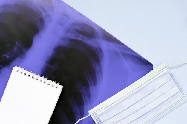 Atemmaske und leere notizblockseite auf röntgenaufnahme der menschlichen lunge, draufsicht. coronavirus covid-19-krankheitskonzept.