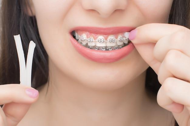 Auftragen von kieferorthopädischem wachs auf die zahnspangen. brackets an den zähnen nach dem aufhellen. selbstligierende halterungen mit metallbindern und grauen gummibändern oder gummibändern für ein perfektes lächeln