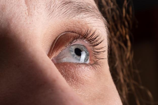 Auge einer frau mit keratokonus, ausdünnung der hornhaut.