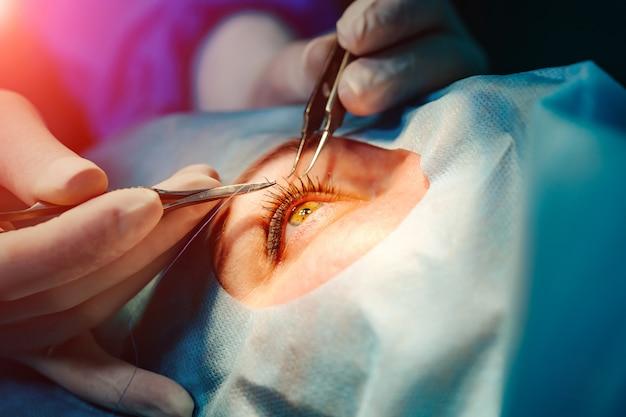 Augenoperation
