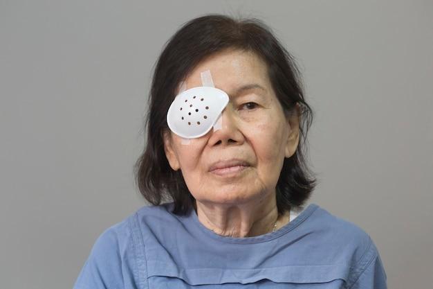 Augenschutz nach kataraktoperation.