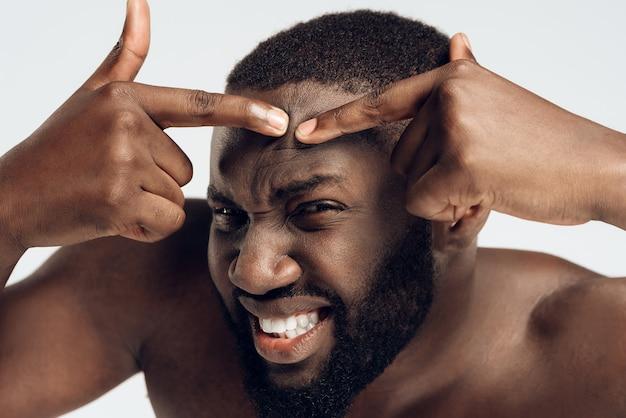 Ausdauernder schwarzer mann drückt pickel auf gesicht.