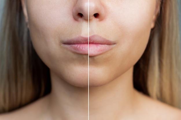 Ausgeschnittene aufnahme des gesichts einer jungen frau mit lippen vor und nach der lippenvergrößerung injektion von füllstoffen