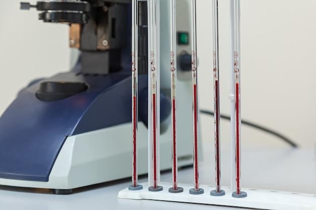 Ausrüstung für die untersuchung von blut im labor
