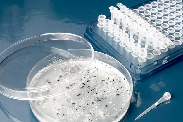 Bakterienkolonien auf agarplatte