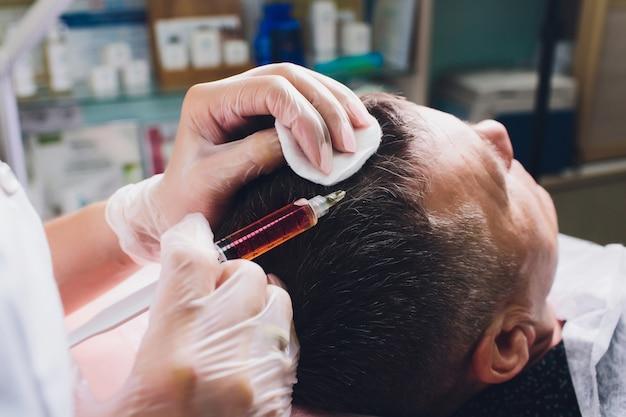 Behandlung von kahlheit mit schönheitsspritzen. kosmetiker hände in handschuhen machen eine subkutane injektion. plasmalifting männlicher patient.