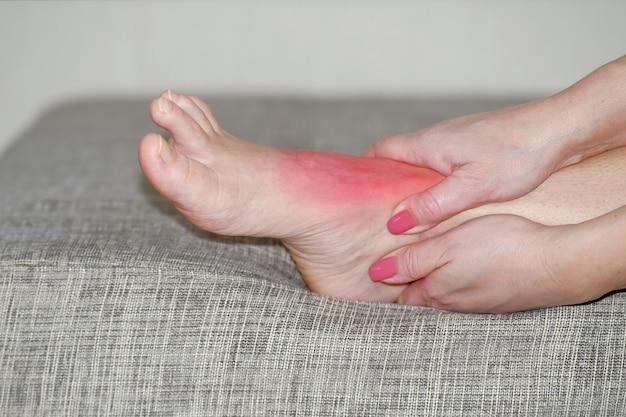 Beingelenksverletzung, roter entzündeter fleck. medizinische behandlung. sportverletzung.