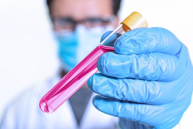 Berufswissenschaftler, der ein reagenzglas mit flüssigkeit für laborversuche hält