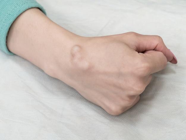 Big cyst hygroma, flüssigkeitsgefüllter klumpen, der mit einem gelenk, einem tumor oder einer schwellung auf einem gelenk verbunden ist.