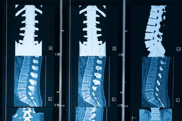 Bild magnetresonanztomographie der menschlichen wirbelsäule mrt