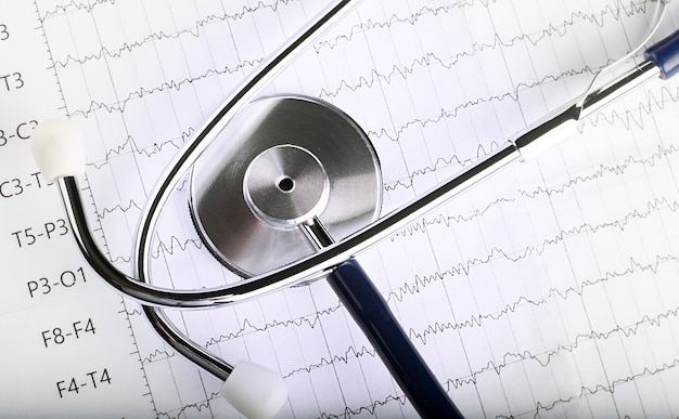 Blaues stethoskop auf dem ekg-diagrammpapier des elektrokardiogramms. ekg-herzdiagramm-scan-isolat auf weiß. krankenversicherung und medizinischer hintergrund
