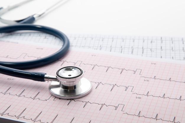Blaues stethoskop auf ekg-diagrammpapier. ekg-herzdiagramm-scan-isolat auf weiß. krankenversicherung und medizinischer hintergrund