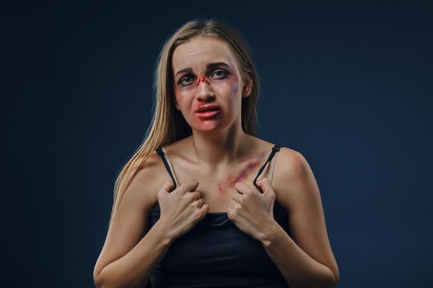 Blondes mädchen mit zerzaustem haar und blauen flecken im gesicht und auf der brust. häusliche gewalt, missbrauch.