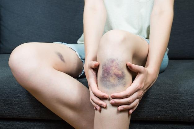 Blutergussverletzung am knie der jungen jungen frau