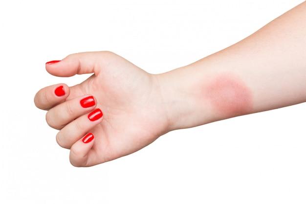 Brennen sie auf weiblicher hand mit roten nägeln, die auf weiß lokalisiert werden