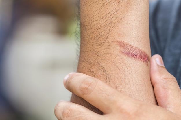 Brennende haut am arm, verletzung durch feuer