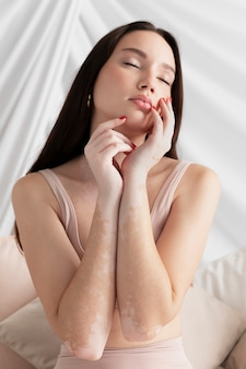 Brünette frau mit vitiligo posiert
