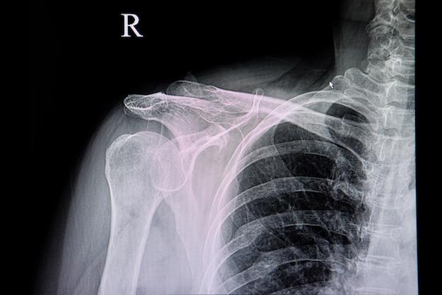 Brustradiographie eines patienten mit altem rippenbruch