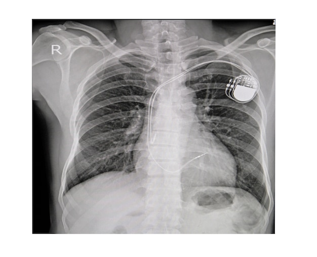 Bruströntgenbild des dauerhaften schrittmacherimplantats im körperkasten