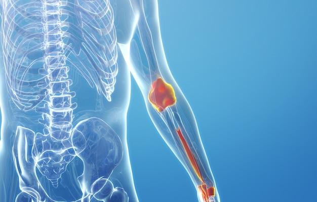 Cinema 4d-rendering der hyperplasie des menschlichen armknochens