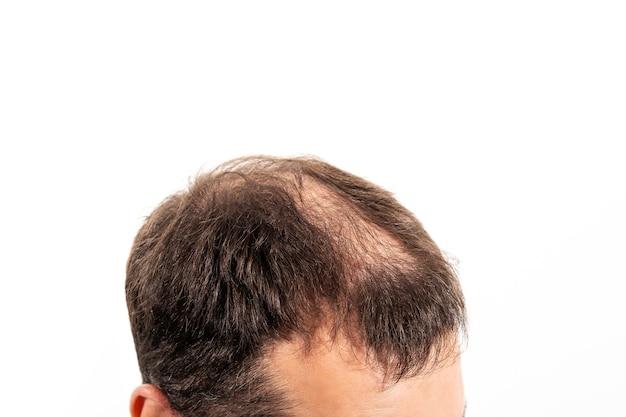 Close-up glatze eines jungen mannes auf einem weißen hintergrund isoliert.