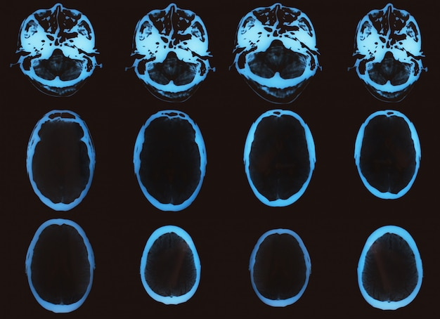 Computertomographie-röntgenbild