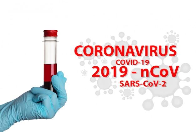 Coronavirus (covid-19. laborbluttest in einem kolben an weißer wand. sars-cov-2