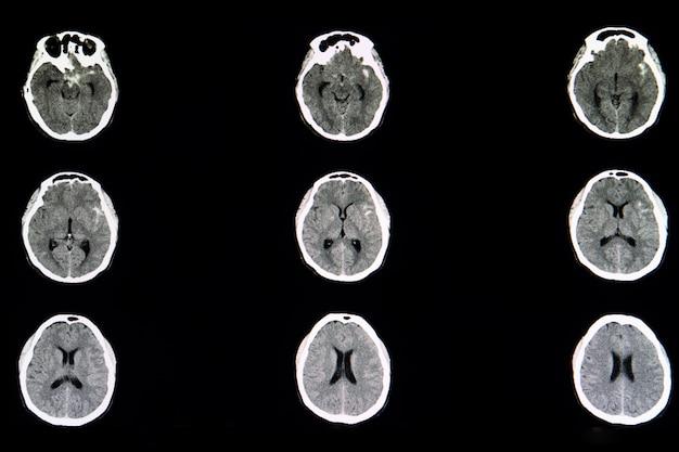 Ct-gehirn-scan eines zerebralen aneurysmas