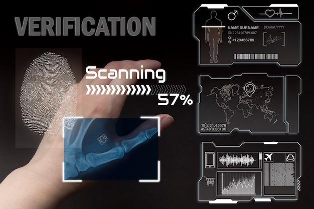 Cyber-security-netzwerkarm mit digitalen implantaten und mikrochips unter der haut der zukunft
