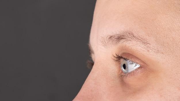 Das auge einer frau, bei der keratokonus, hornhautdystrophie diagnostiziert wurde.