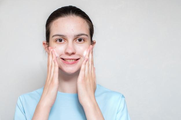 Das gesicht eines lächelnden schönen mädchens mit akne verwendet einen schäumenden reiniger